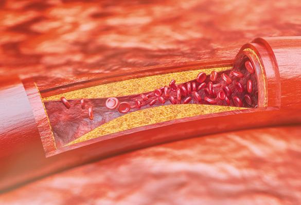 CAP & atherosclerosis / vessel block